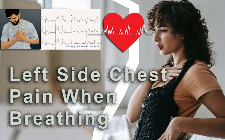 left side chest pain